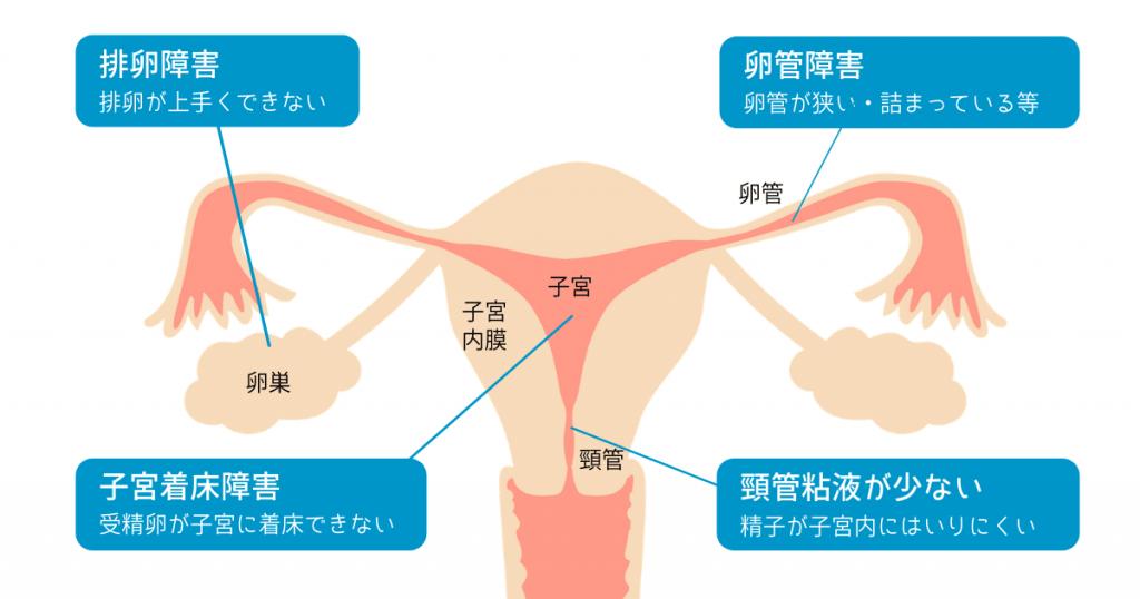 女性の不妊原因